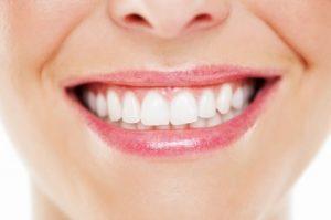 Make Your Teeth Whiter
