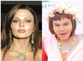 Bollywood,Celebrities,Ugly Nose